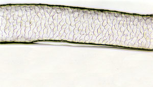 Figure 113 is a photomicrograph of a scale pattern of moose hair.