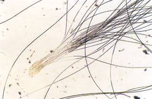 Figure 126 is a photomicrograph of chinchilla hair bundles.