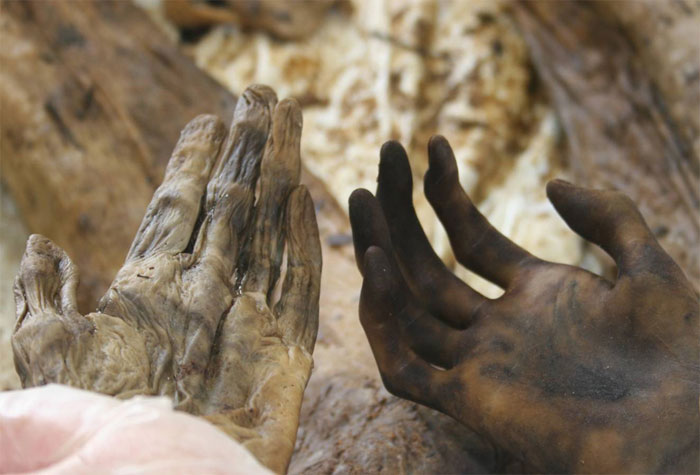 Figure 6 shows left and right hands, both exposed in the same environmental conditions, from a body recovered after the December 2004 South Asian tsunami. The hands prior to boiling were macerated, exhibiting wrinkles and no visible friction ridge detail (left hand). The hands after boiling were reconditioned, exhibiting visible friction ridge detail and no wrinkles (right hand).