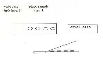 Figure 23 is an illustration of slide preparation.