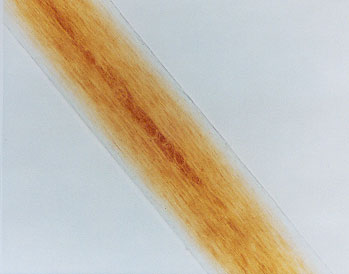 Figure 17 is a photomicrograph of pigment distribution in red human hair.