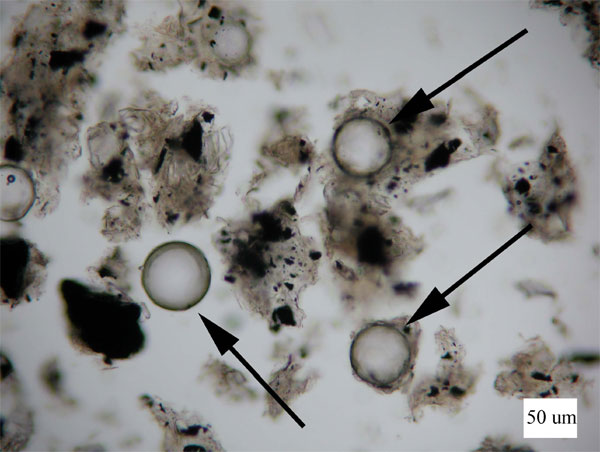 Figure 3b is an image of photomicrographs showing glass spheres found in five of the six samples from Group 3.