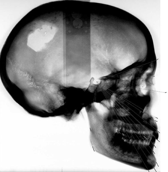 Large size of Figure 3. Lateral cephalograph of the project skull (negative). The black markers show the predicted profile growth pattern and indicate the alteration during the adult years of life.