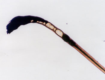 Figure 74 is a photomicrograph of burned hair.