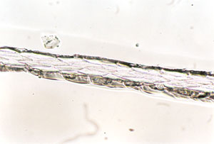 Figure 131 is a photomicrograph of a scale cast of red fox hair (proximal region).