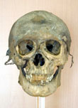Photograph of naturally mummified skeleton (front view) of Anital Simon found in Hungary in the mid-1990s.