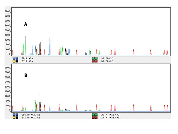 Figure 2 depicts the AmpFℓSTR Profiler Plus GeneScan displays corresponding to (A) DNA extraction performed with the sperm-containing samples protocol (with slight modifications) and (B) Chelex extraction from the cotton support.