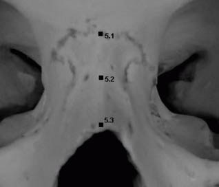Representation of landmarks on the nasal bone: nasion, midnasal, rhinion.