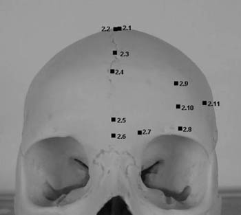 Representation of landmarks on the frontal bone: vertex, bregma, trichion, metopion, ophryon, glabella, lateral glabella, supraorbital, frontal eminence, lateral frontal, frontotemporale.
