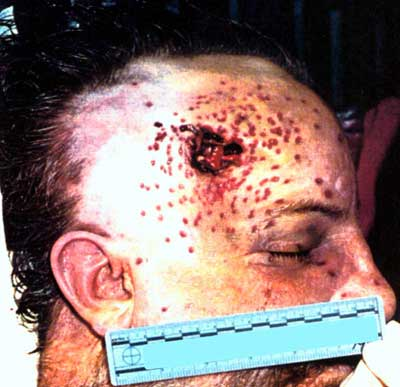 Figure 11 is a photograph showing a wound caused by a flare gun.