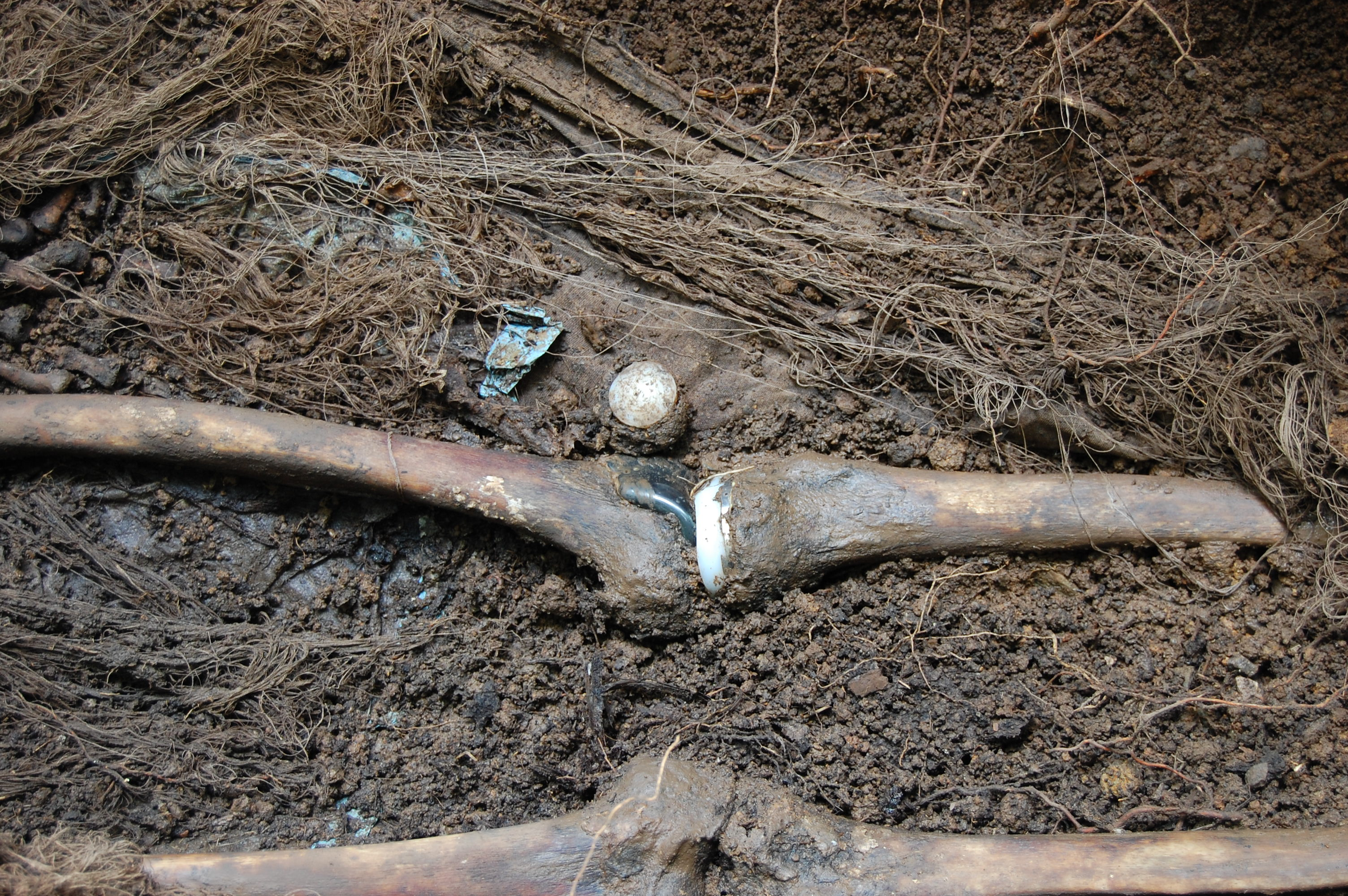 Artifical knee on cadaver