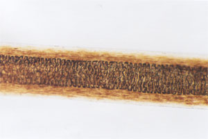 Figure 123 is a photomicrograph of shield area of muskrat hair.