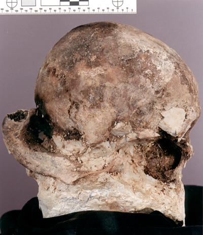 A photograph of the specimen skull with most of the plastic matrix removed.