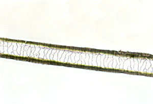 Figure 146 is a photomicrograph of a scale cast of goat hair.