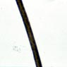 Figure 3: Color microscopic slide of one of 16 hair samples from individuals with both African-American and Caucasian ancestry. Click for enlarged view.