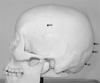 Representation of landmarks on the occipital and parietal bones: opisthocranion, inion, lambda, euryon.