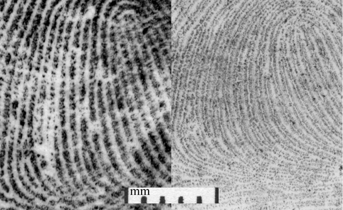 Figure 10 is the recording of an epidermal and dermal fingerprint. The dermal print (right) varies in size from the epidermal print (left). In addition, the dermal friction ridge detail is recorded as double rows of dermal papillae compared to epidermal friction ridge detail, which is recorded as single ridge units.