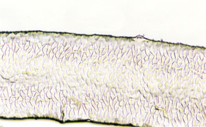 Figure 115 is a photomicrograph of a scale pattern of antelope hair.
