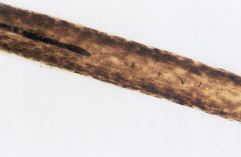 Figure 42 is a photomicrograph of head hair of Negroid individual.