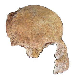 "Figure 6. Frontal or Anterior of the Same Cranial Fragment after the Background Was ""Erased"" Using Photoshop"