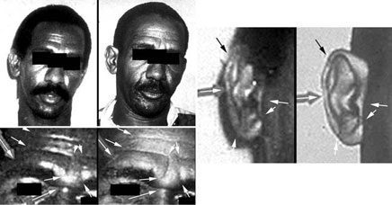 Figure 2 illustrates demonstrative exhibits from a facial comparison examination in which ACE-V was used to individualize the subject as the same person in both images.