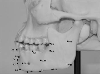 Representation of landmarks on the mandible: infradentale, sub-M2, occlusal line, subcommissural, chin-lip fold, suprapogonion, pogonion, gnathion, mental tubercle, anterior, border of the mandible, middle of the mandibular body, insertion of masseter, anterior, insertion of masseter, posterior, gonion, mandibular branch.