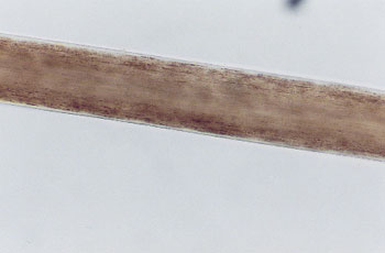 Figure 59 is a photomicrograph of inner cuticle margins.
