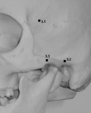 Representation of landmarks on the temporal bone:temporal fossa, root of zygoma, zygion.