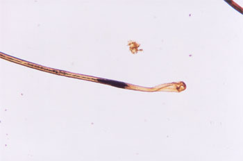 Figure 81 is a photomicrograph of postmortem root band.