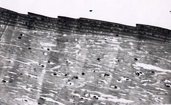 Figure 84. Transmission Electron Photomicrograph of Cuticular Scales Provided to the FBI Laboratory by Charles Lynch